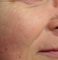 омоложение кожи
